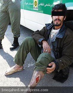 عکس از یک جوان ایرانی، معتاد به کراک